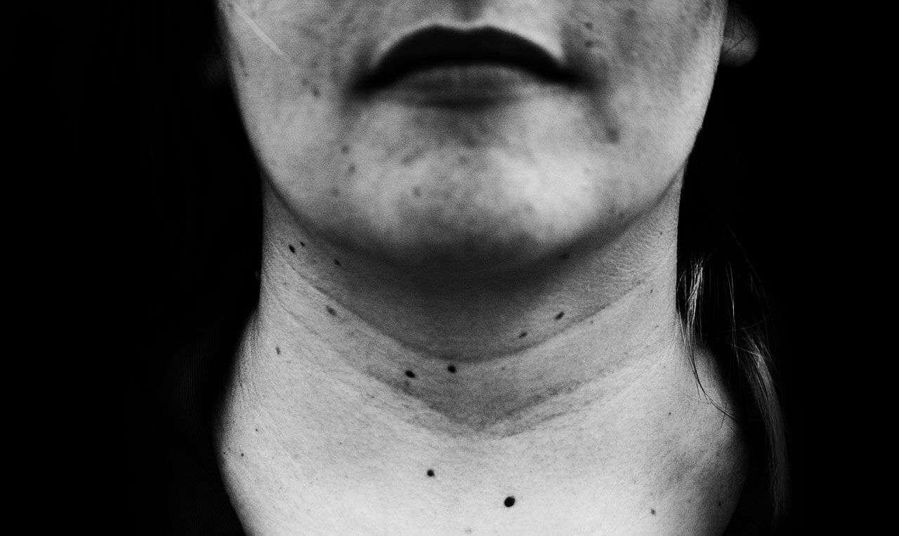 Collier di Afrodite rughe da tech neck medicina estetica inestetismo